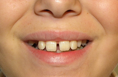 14 year old boy treated for gap in front teeth - Before