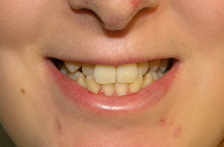 16 year old girl treated with Premium Metal Braces - Before